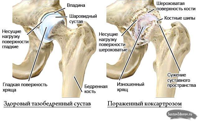 Тазостегновий суглоб симптоми хвороби лікування