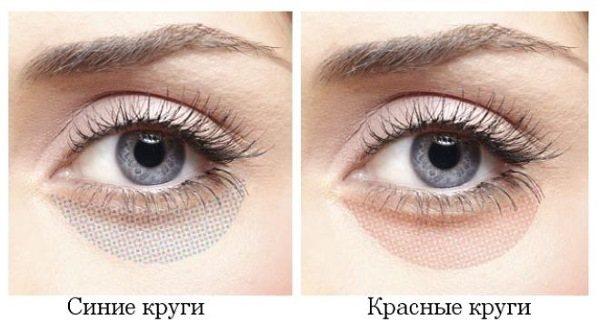 Темні мішки під очима, кола вокруг очей.  Причини и лікування у жінок и чоловіків