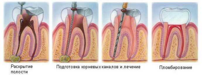 Терапевтичне лікування кісти зуба