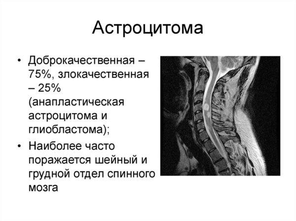 срок статистика астроцитома