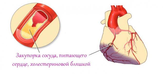 типи інфаркту