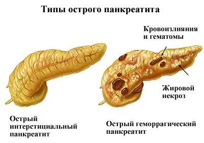типи панкреатиту