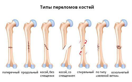 Типи переломів кісток