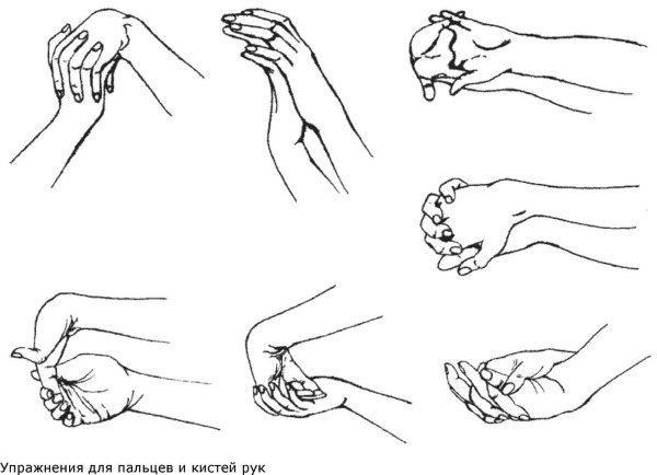 Тунельний синдром зап'ястного каналу. Симптоми і лікування. Гімнастика, народні засоби, операція