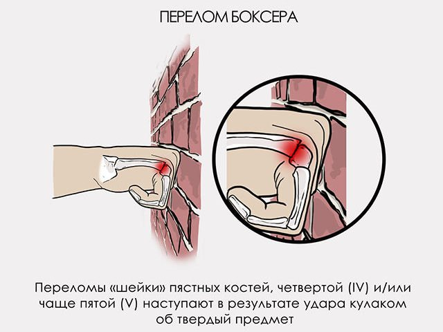 травма боксера