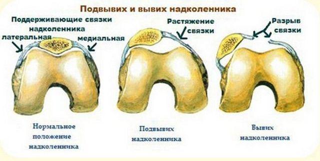 Травма коліна, меніска: симптоми, ознаки, лікування