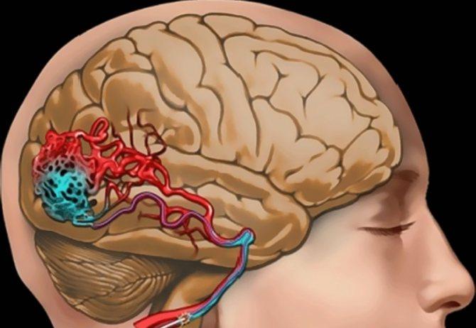Травматичні пошкодження зорового нерва