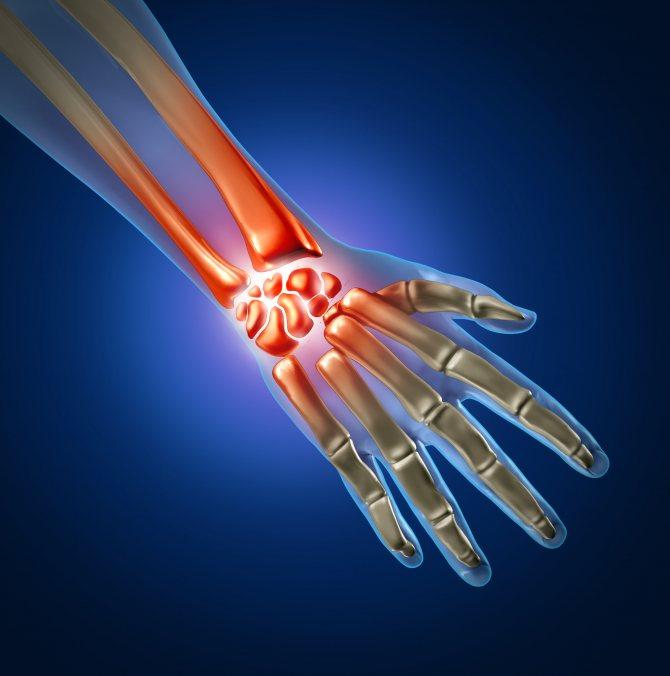 Травмування кистей рук