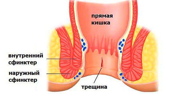 Тріщіна прямої кишки в початковій стадії