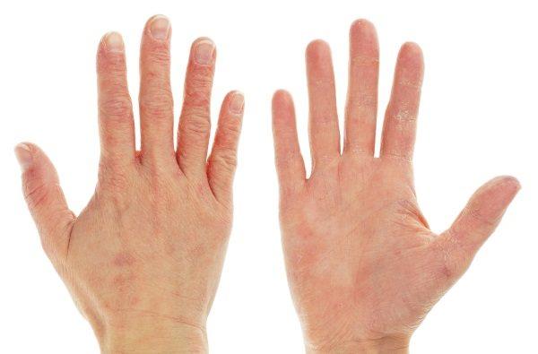 Тріщини на пальцях рук - причини, фото. Лікування в домашніх умовах народними засобами, лікувальними мазями