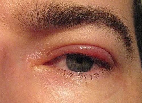 трихінельоз симптоми у дітей