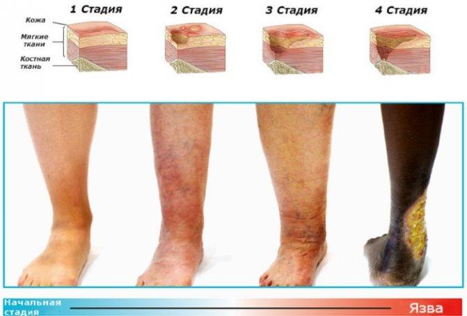 Трофічні виразки на ногах. Фото, лікування, чому утворюються, ніж мазати