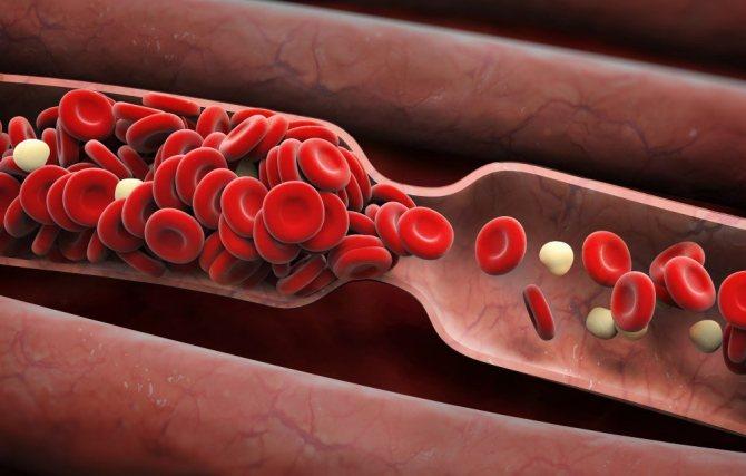 тромб в артерії