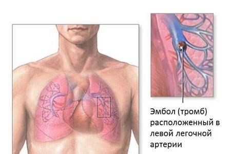 тромб в легеневій артерії