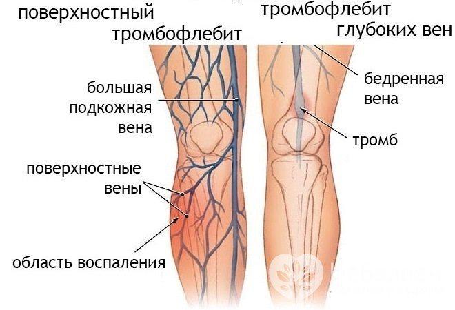 Тромбофлебіт вен ніжніх кінцівок буває поверхнево и глибокий
