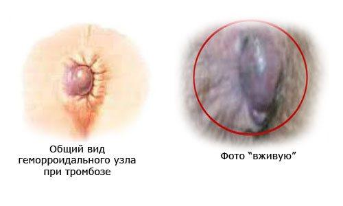 Тромбоз зовнішнього гемороїдального вузла