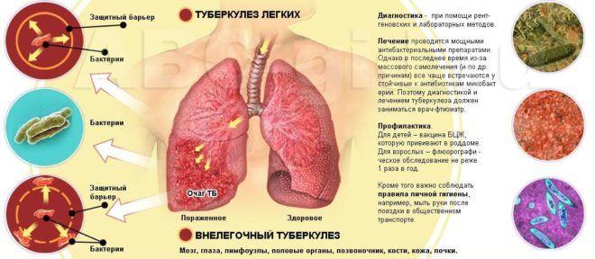 Туберкульоз є ускладнення пневмофиброза