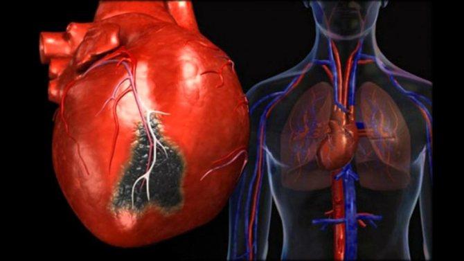 Важкі захворювання серця