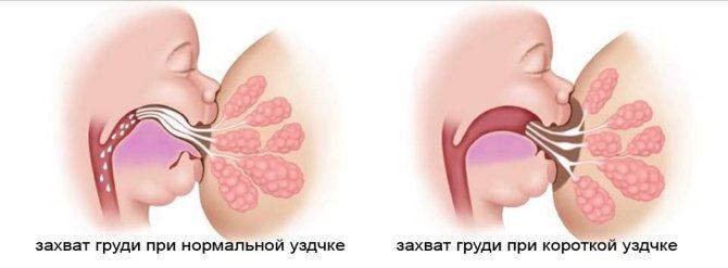 у грудничка