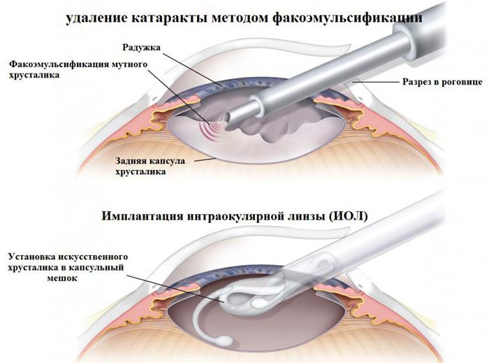 видалення катаракти