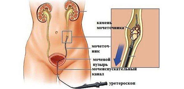 уретроскопія