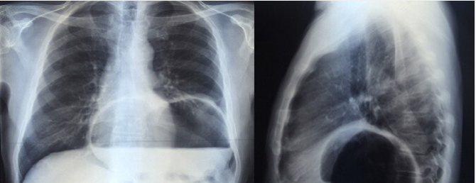 Вражена параезофагеальние грижа стравохідного отвору діафрагми в прямій і бічній проекціях.