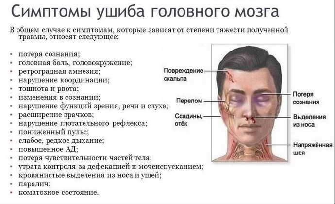 забій головного мозку симптоми