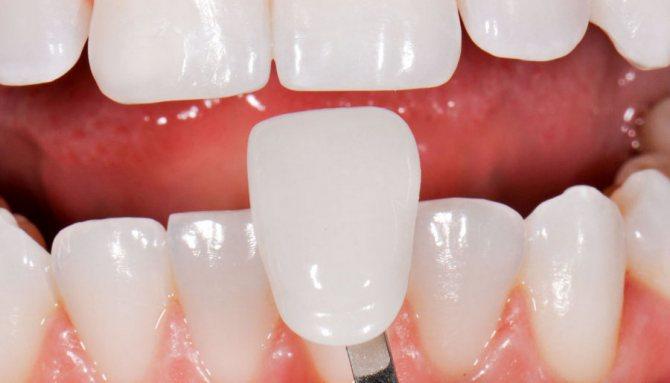 Установка вінірів на зуби