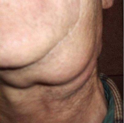 Збільшення лімфатичних вузлів в підщелепної області ліворуч