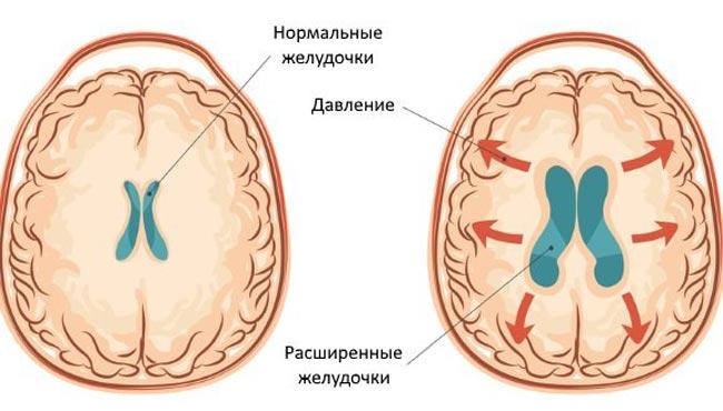 збільшення шлуночків при гідроцефалії