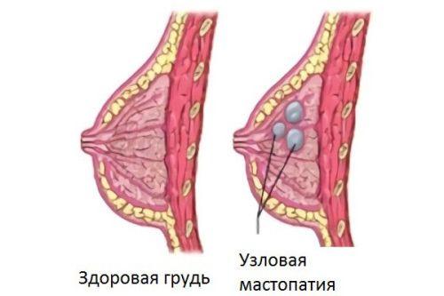 Вузлова форма