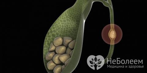 У більшості випадків причиною гострого холециститу стає камінь в жовчному протоці