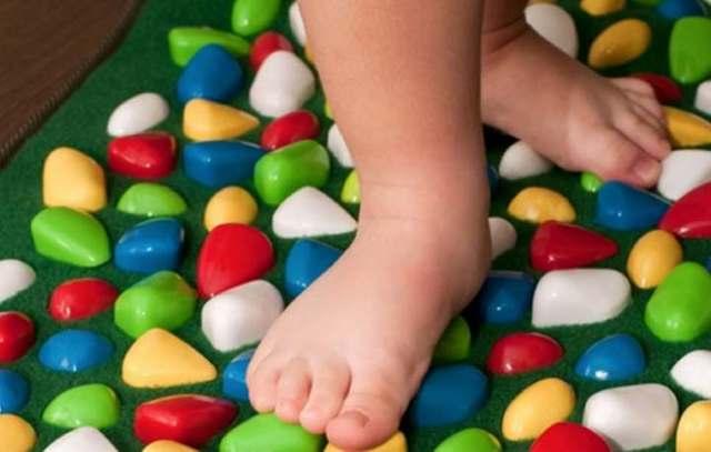 Вальгусное плоскостопість у дітей: лікування и як виправити стопу?