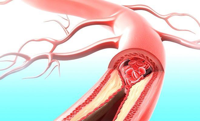 васкуліт судин головного мозку симптоми і лікування