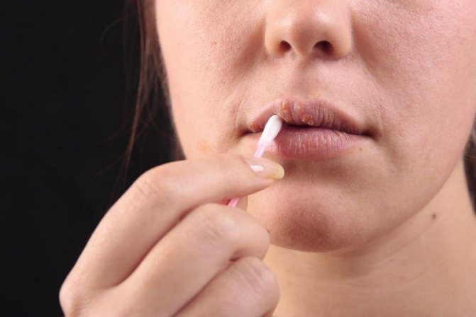 Важливо уникати дотиків до запаленої ділянки шкіри