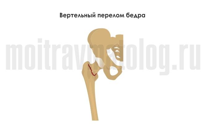 вертельной перелом стегна