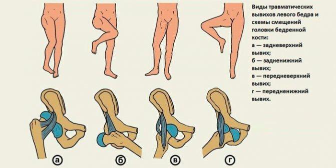 Виду травматичних вивихів тазостегнового суглоба