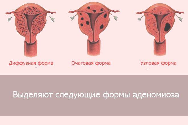 види аденомиоза