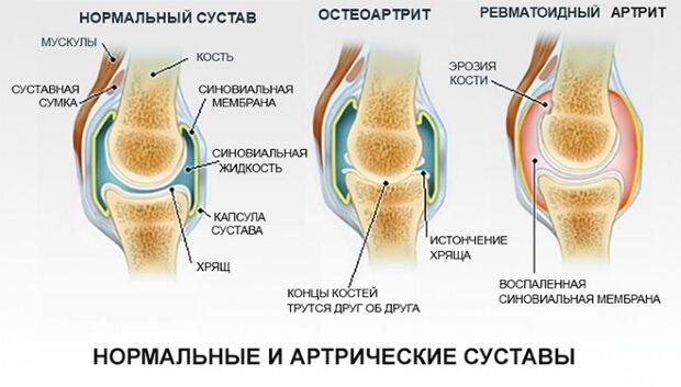 види артриту
