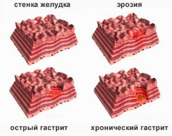 Види і форми гастриту