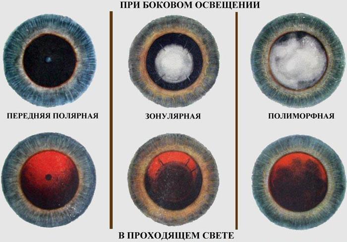 види катаракти