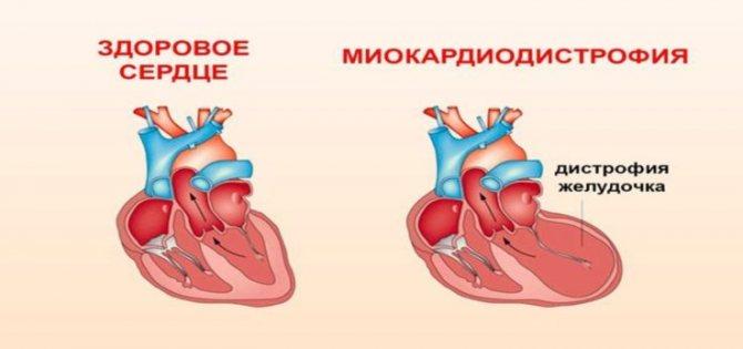 види міокардіодистрофії