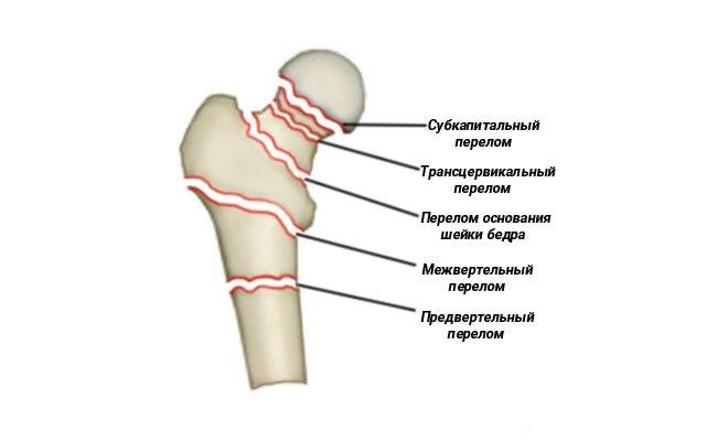 види переломів стегна