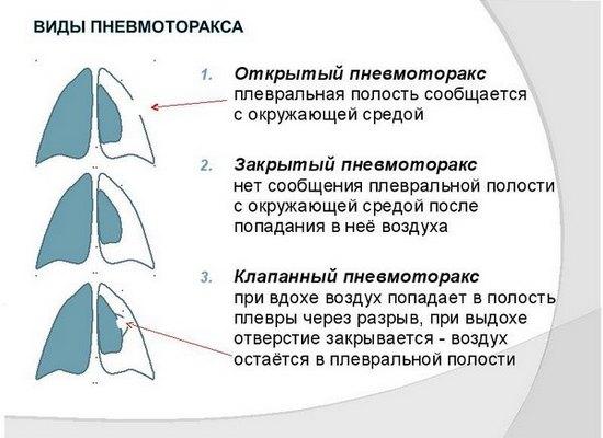 види пневмотораксу