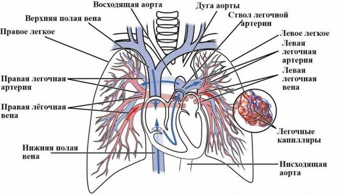 види тромбоемболії легеневої артерії