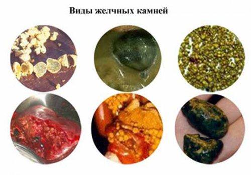 Види жовчніх каменів