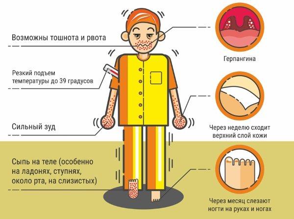 Вірус Коксакі у дітей.  Симптоми, чем лікуваті, інкубаційній период