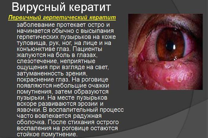 вірусній кератит