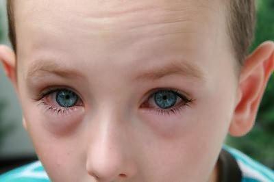 вірусній кон'юнктивіт лікування симптомів у дітей и дорослих