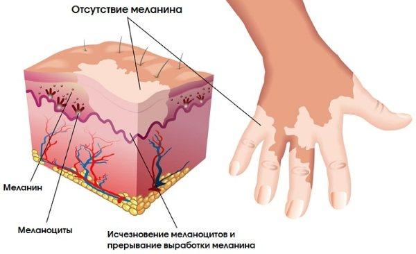 Вітіліго. Причини виникнення і лікування. Що це за хвороба, фото, ознаки. Народні засоби, як позбутися